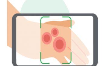 هوش مصنوعی گوگل با توانایی تشخیص بیماری های پوستی!